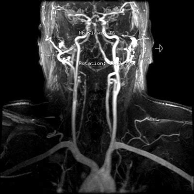 Radiology Cases: Vertebral Artery Dissection and PICA infarct