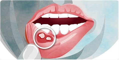 What is Stomatitis?